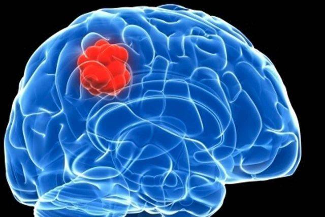 OΓΚΟΣ στον εγκέφαλο και τα οκτώ συμπτώματα του.